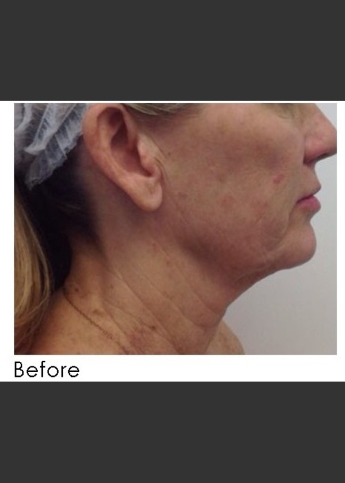 Before Photo for  Infini Treatment for Neck Rejuvenation - Annie Chiu, MD - ZALEA Featured Before & After
