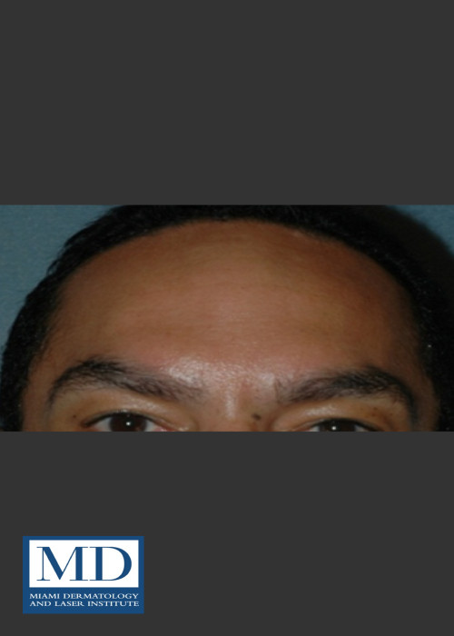 After Photo for Neurotoxin Treatment of Forehead 131 - Jill S. Waibel, MD - ZALEA Featured Before & After