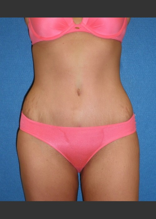 After Photo for Tummy Tuck Case #1 - South Coast Plastic Surgery - ZALEA Featured Before & After