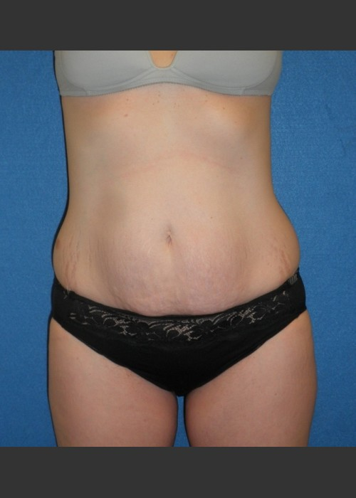 Before Photo for  Tummy Tuck Case #1 - South Coast Plastic Surgery - ZALEA Featured Before & After