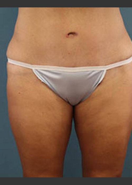 After Photo for Before and After Tummy Tuck - Arthur Handal - ZALEA Featured Before & After
