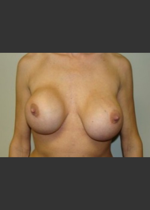 Before Photo for Breast Revision 5654 - Sanjay Grover MD FACS - ZALEA Featured Before & After