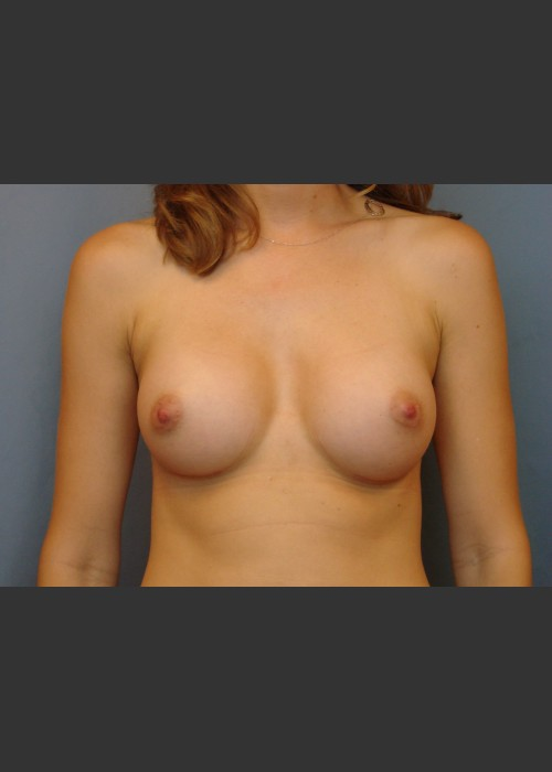 After Photo for Breast Augmentation - Michael S. Beckenstein, MD - ZALEA Featured Before & After