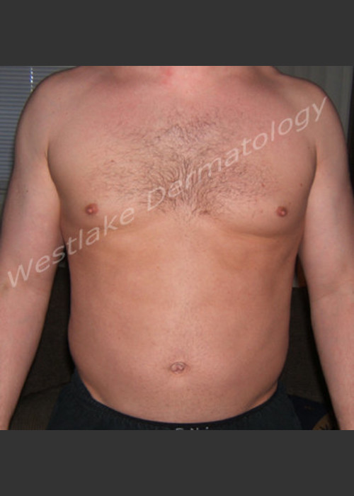 Before Photo for  SmartLipo Liposuction of Male Abdomen - Gregory A Nikolaidis - ZALEA Featured Before & After
