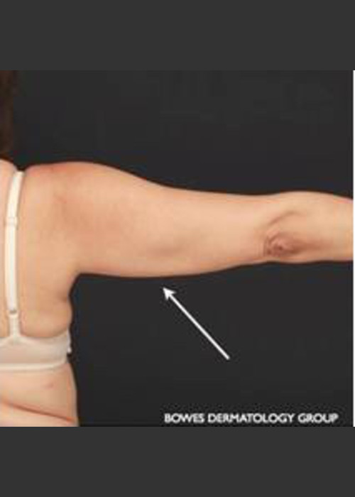 After Photo for CoolSculpting on Woman's Upper Arm - Leyda Elizabeth Bowes, M.D. - ZALEA Featured Before & After