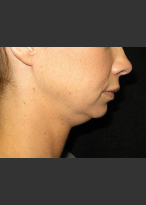 Before Photo for  Laser Asissted Liposuction - Robert Aycock - ZALEA Featured Before & After