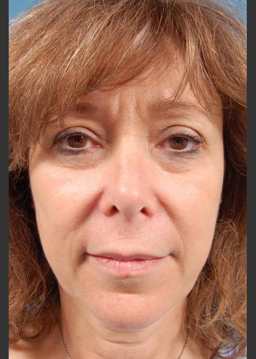Before Photo for  Facelift Surgery - Thomas A. Mustoe, MD, FACS - ZALEA Featured Before & After
