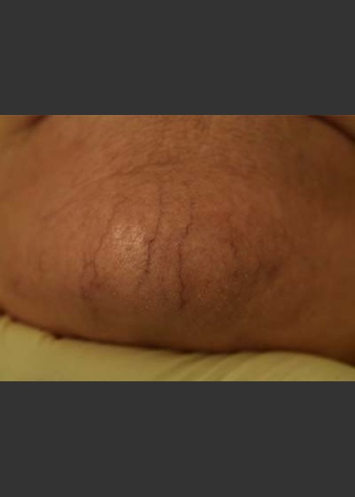 Before Photo for  Cutera Laser Treatment - Skin Cancer Specialists P.C. & Aesthetic Center - ZALEA Featured Before & After