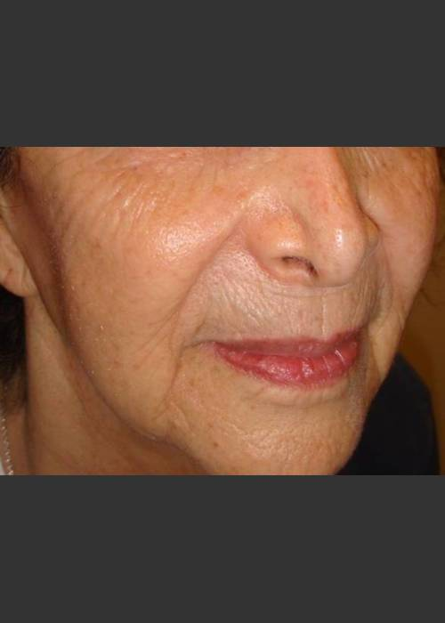 After Photo for Rejuvenating devices sun damaged skin - Christopher B. Zachary, MD  - ZALEA Featured Before & After