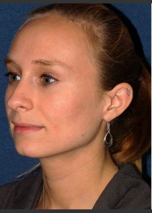 After Photo for Facial Acne Treatment - Dr. Sabrina G. Fabi  - ZALEA Featured Before & After