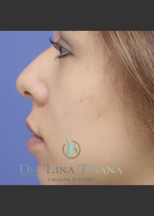 Before Photo for  Rhinoplasty - Lina Triana, MD - ZALEA Featured Before & After