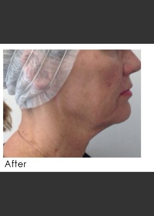 After Photo for Infini Treatment for Neck Rejuvenation - Annie Chiu, MD - ZALEA Featured Before & After
