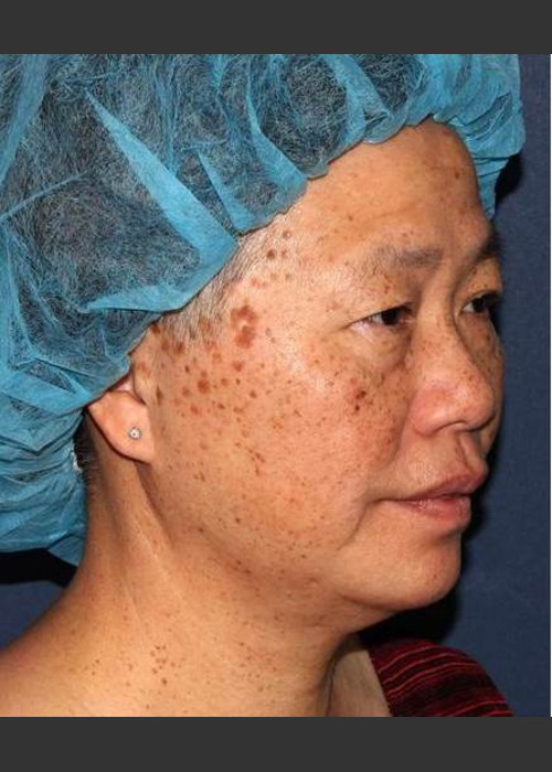 Before Photo for  Sun Spot Reduction - William F. Groff, M.D. - ZALEA Featured Before & After