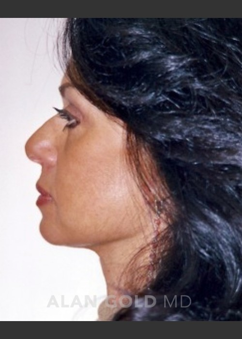 After Photo for Rhytidectomy (Facelift) 1884 Side View - Alan Gold MD  - ZALEA Featured Before & After