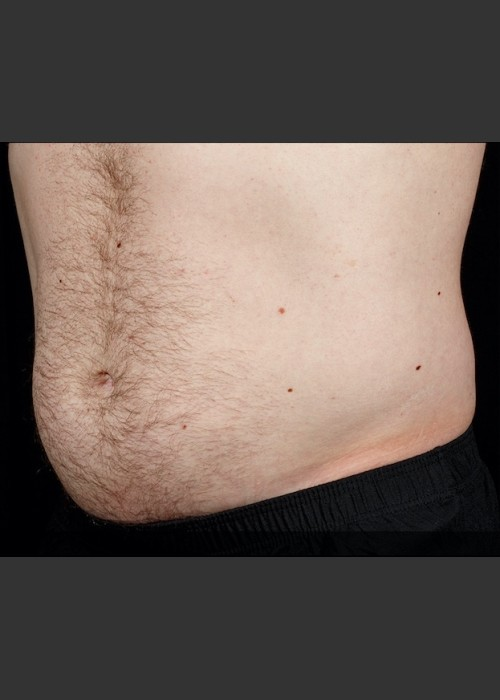 After Photo for SculpSure Abdomen - Sean Doherty  - ZALEA Featured Before & After
