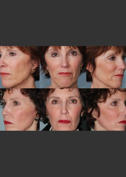 After Photo for Single treatment of fully ablative  Laser Resurfacing - Mark B. Taylor, M.D. - ZALEA Featured Before & After