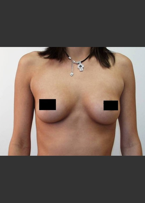 Before Photo for  Breast Augmentation - Braden C. Stridde, M.D. - ZALEA Featured Before & After