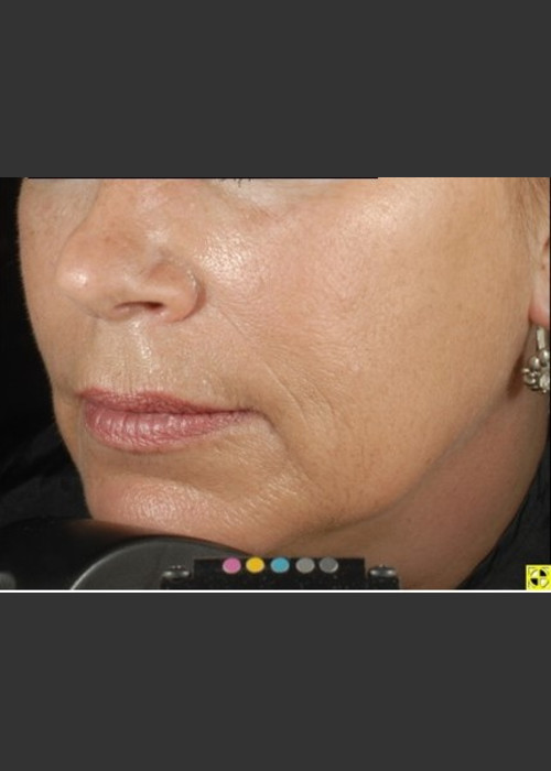 After Photo for Botox Dermal Fillers and Pigment Removal  - Brian D. Zelickson, M.D. - ZALEA Featured Before & After