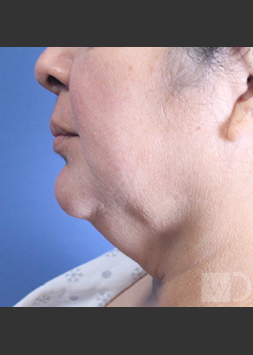 Before Photo for  SmartLipo Liposuction of Lower Face - Daniel Friedmann  - ZALEA Featured Before & After