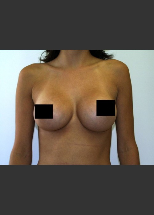 After Photo for Breast Augmentation - Braden C. Stridde, M.D. - ZALEA Featured Before & After