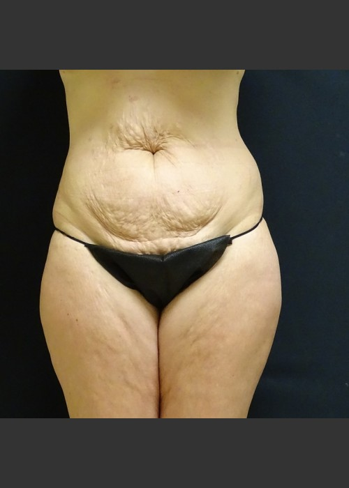 Before Photo for  Tummy Tuck Case #1 - Gallaher Plastic Surgery & Spa MD - ZALEA Featured Before & After