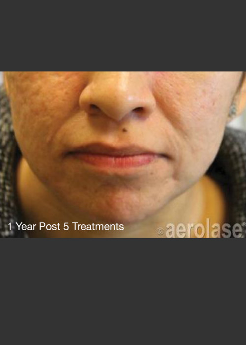 After Photo for NeoClear by Aerolase Acne Treatment - Michael H Gold - ZALEA Featured Before & After
