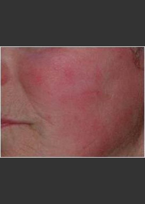 After Photo for IPL Rosacea Treatment #16 - Harvey H. Jay, M.D. - ZALEA Featured Before & After