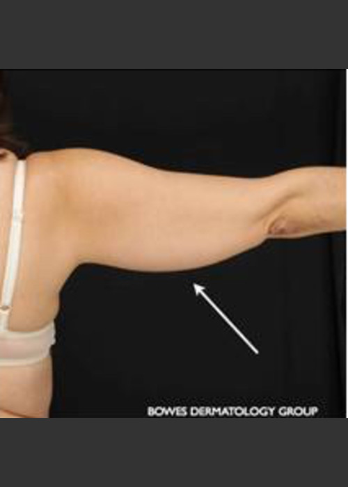 Before Photo for  CoolSculpting on Woman's Upper Arm - Leyda Elizabeth Bowes, M.D. - ZALEA Featured Before & After