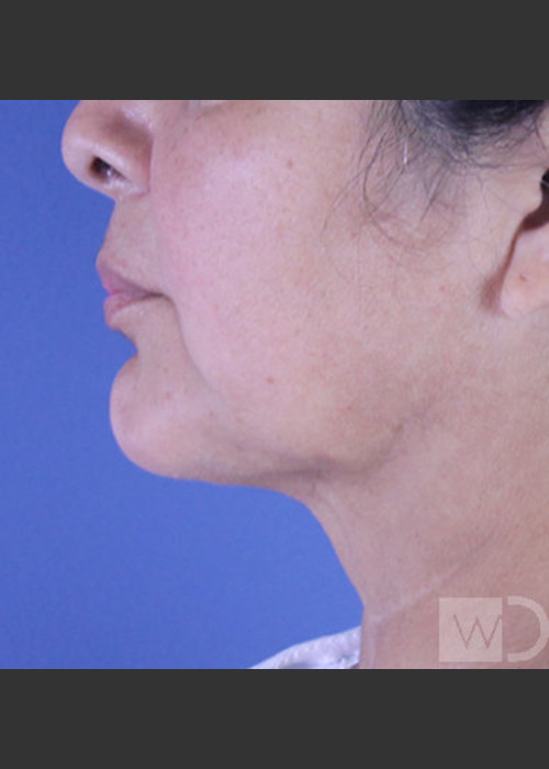 After Photo for SmartLipo Liposuction of Lower Face - Daniel Friedmann  - ZALEA Featured Before & After