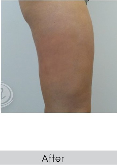 After Photo for VanquishME with Cellutone Treatment - Annie Chiu, MD - ZALEA Featured Before & After