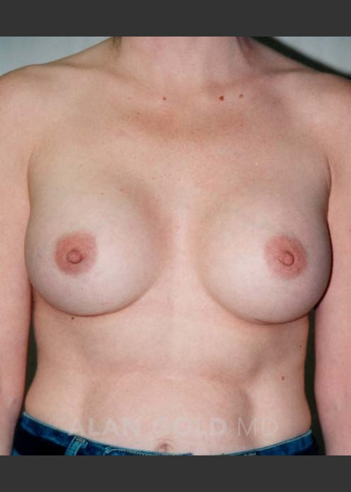 After Photo for Breast Augmentation 582 - Alan Gold MD - ZALEA Featured Before & After