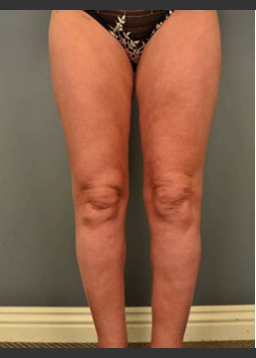 After Photo for Circumferential Liposuction #46 - Dr. David Amron - ZALEA Featured Before & After