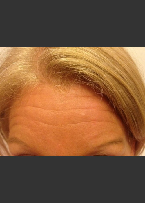Before Photo for  Before & After Botox - Janell Ocampo - ZALEA Featured Before & After