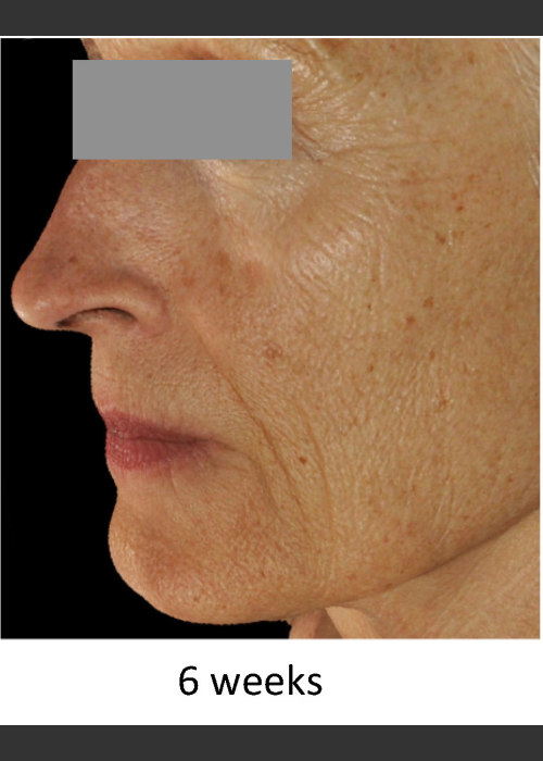 After Photo for DefenAge Skincare Clinical Power Trio - Amy Forman Taub, MD - ZALEA Featured Before & After