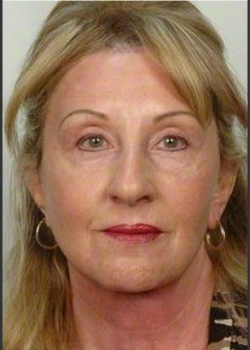 After Photo for 61 year old woman treated with Facelift - R. Scott Yarish MD, FACS - ZALEA Featured Before & After