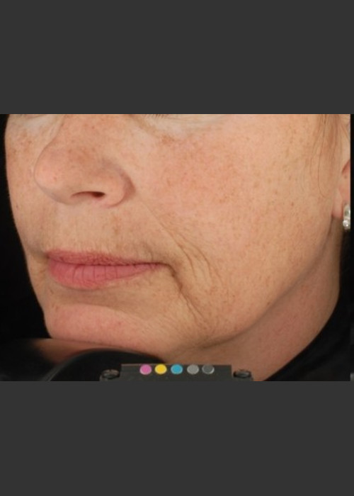 Before Photo for  Botox Dermal Fillers and Pigment Removal  - Brian D. Zelickson, M.D. - ZALEA Featured Before & After