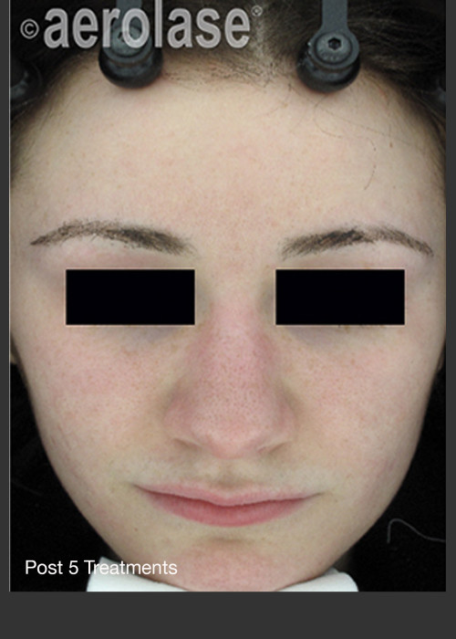 After Photo for NeoClear by Aerolase Acne Treatment - David J. Goldberg, M.D. - ZALEA Featured Before & After