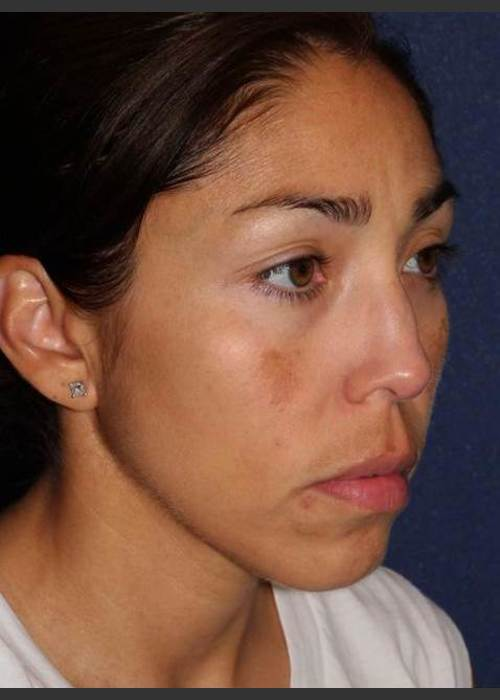 Before Photo for  Facial Pigmentation Removal - Dr. Sabrina G. Fabi - ZALEA Featured Before & After