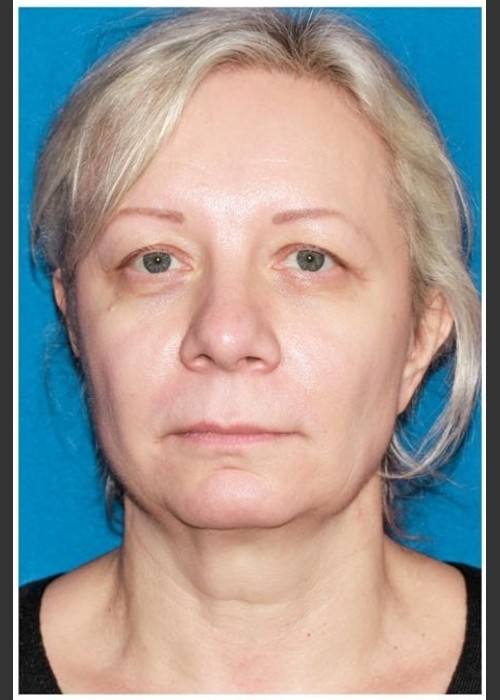 Before Photo for  Facelift - Case 8 - Konstantin Vasyukevich, MD - ZALEA Featured Before & After