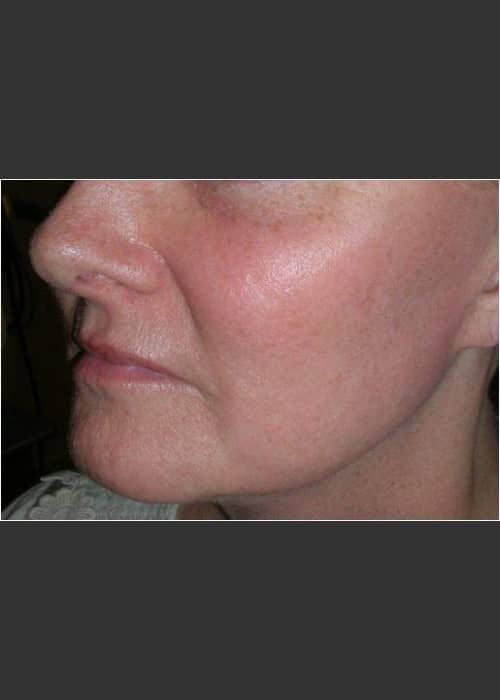 After Photo for Sun Damage and Acne Scarring - Christopher B. Zachary, MD - ZALEA Featured Before & After