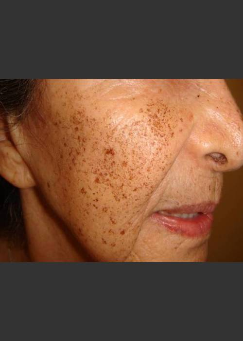 Before Photo for Rejuvenating devices sun damaged skin - Christopher B. Zachary, MD - ZALEA Featured Before & After