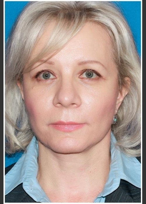 After Photo for Facelift - Case 8 - Konstantin Vasyukevich, MD - ZALEA Featured Before & After