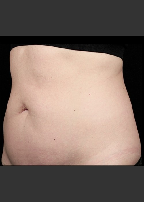 Before Photo for  SculpSure Abdomen - Sean Doherty - ZALEA Featured Before & After