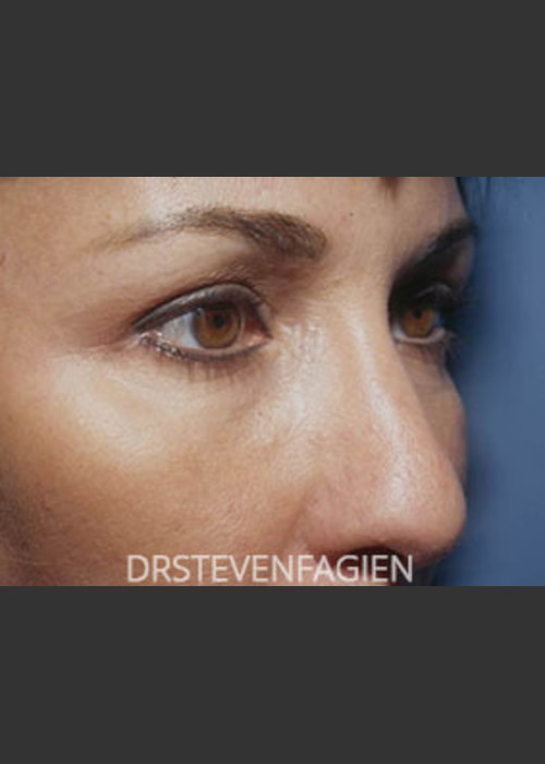 After Photo for Blepharoplasty - Patient 1 - Steven Fagien, MD - ZALEA Featured Before & After