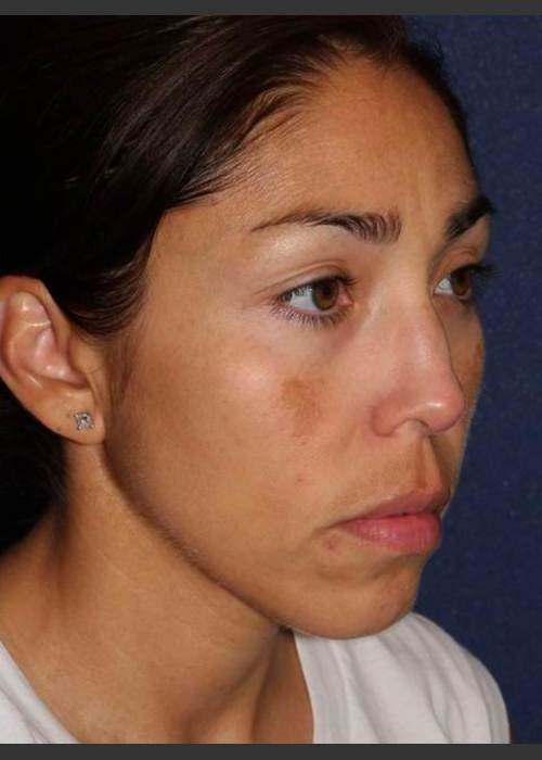 After Photo for Facial Pigmentation Removal - Dr. Sabrina G. Fabi - ZALEA Featured Before & After