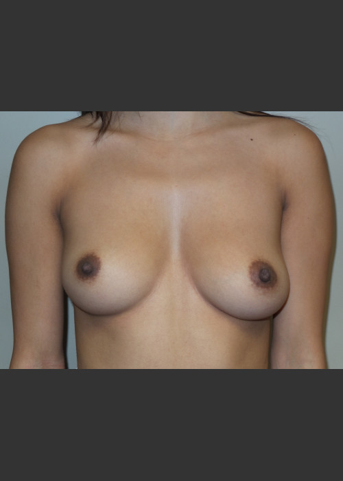 Before Photo for  Silicone Breast Augmentation - Sanjay Grover MD FACS - ZALEA Featured Before & After