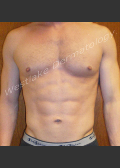 After Photo for SmartLipo Liposuction of Male Abdomen - Gregory A Nikolaidis - ZALEA Featured Before & After