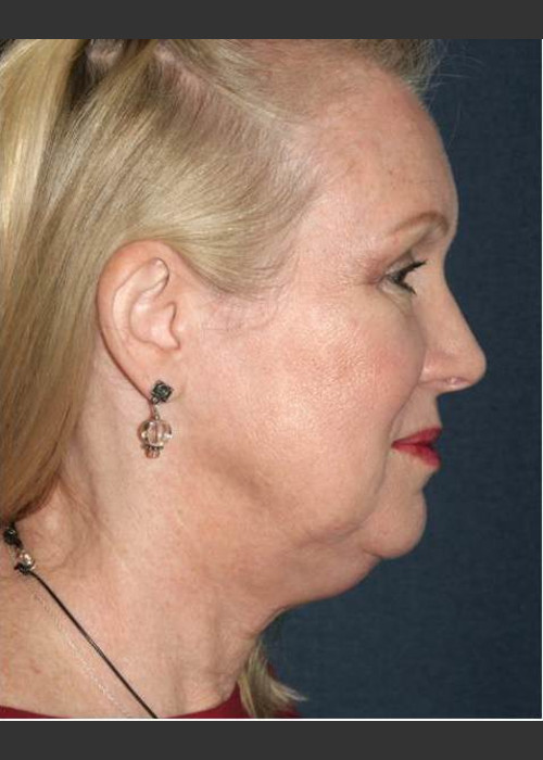Before Photo for  Non-invasive Chin Contouring - Dr. Sabrina G. Fabi - ZALEA Featured Before & After