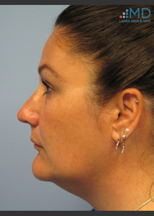 After Photo for Exilis Skin Tightening of the Lower Face - Margaret Ann Weiss - ZALEA Featured Before & After
