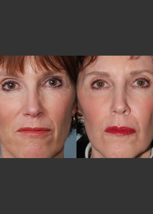 Before Photo for  Single treatment of fully ablative  Laser Resurfacing - Mark B. Taylor, M.D. - ZALEA Featured Before & After